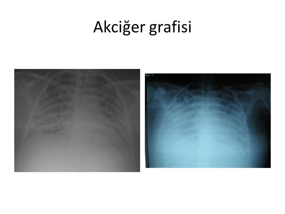 Tanı Viral pnömoni (H1N1) Bakteriyel pnömoni Akciğer Ödemi ARDS