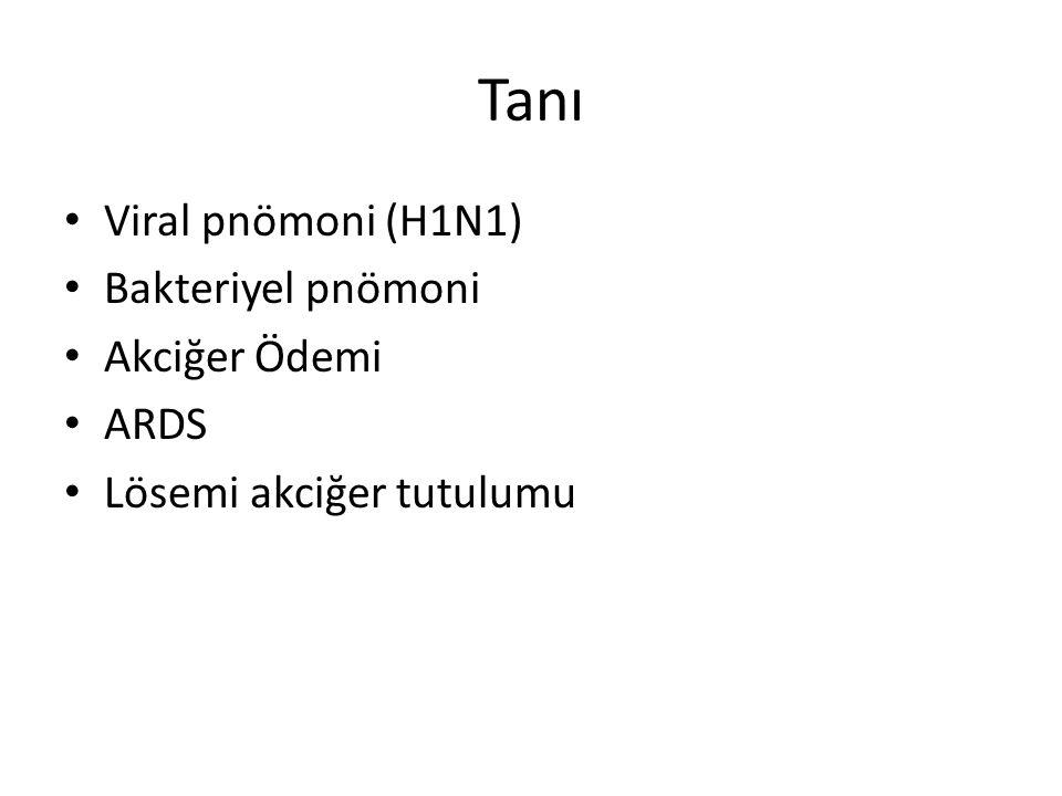 Bakteriyel pnömoni H1N1: (-)
