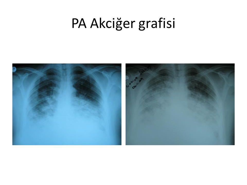 PA Akciğer grafisi