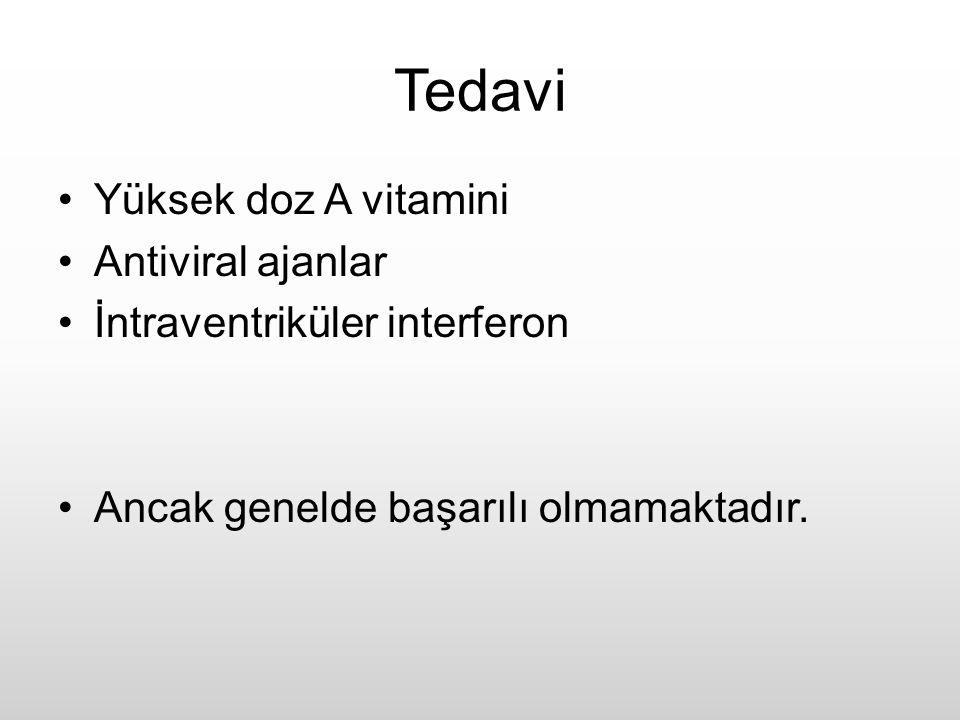 Tedavi Yüksek doz A vitamini Antiviral ajanlar İntraventriküler interferon Ancak genelde başarılı olmamaktadır.