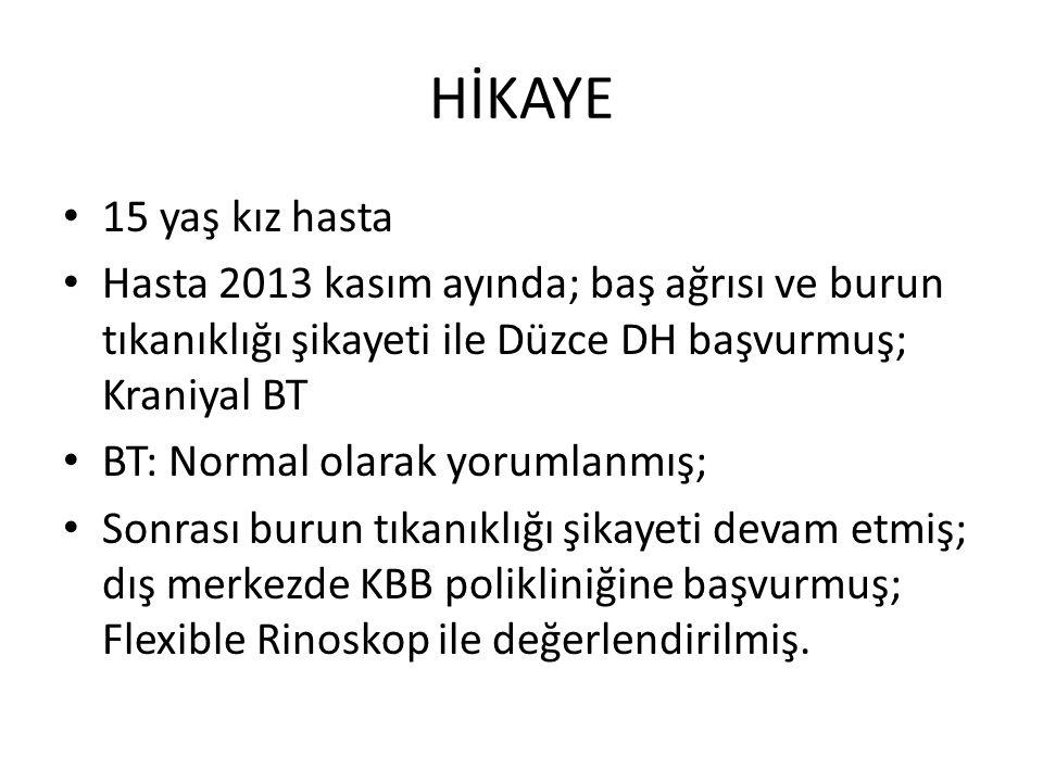 HİKAYE 15 yaş kız hasta Hasta 2013 kasım ayında; baş ağrısı ve burun tıkanıklığı şikayeti ile Düzce DH başvurmuş; Kraniyal BT BT: Normal olarak yoruml