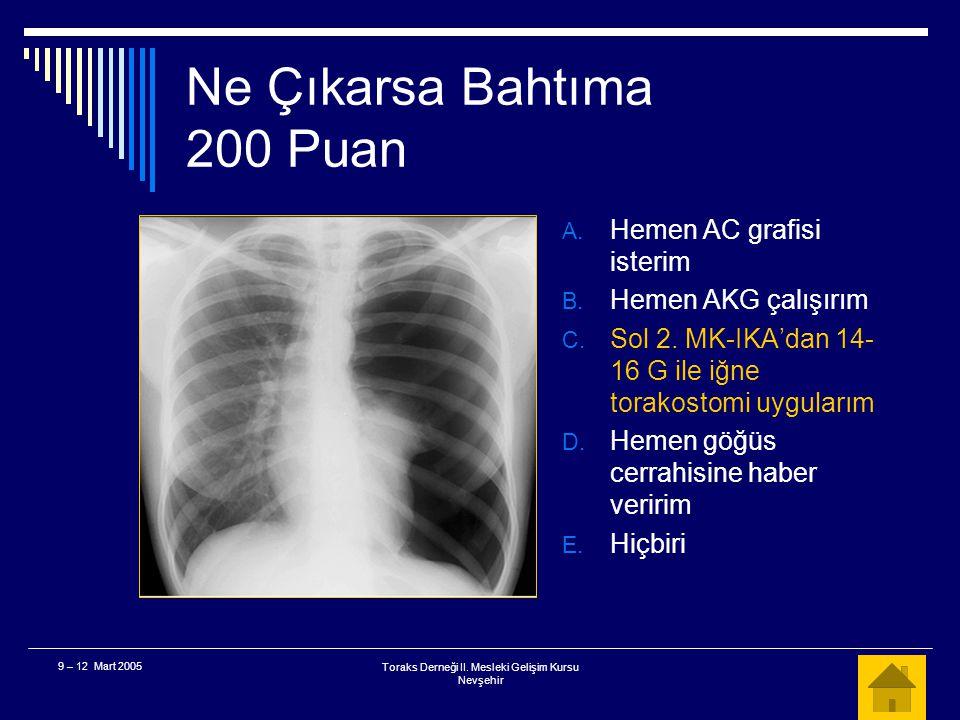 Toraks Derneği II. Mesleki Gelişim Kursu Nevşehir 9 – 12 Mart 2005 Ne Çıkarsa Bahtıma 200 Puan  Acil servisinizde ciddi solunum sıkıntısı olan bir ha