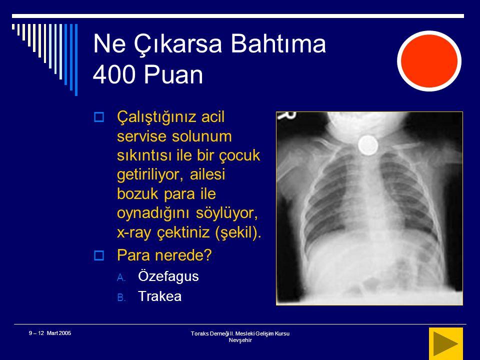 Toraks Derneği II. Mesleki Gelişim Kursu Nevşehir 9 – 12 Mart 2005 Ne Çıkarsa Bahtıma 300 Puan a b A B (AxB) – (axb) (AxB)