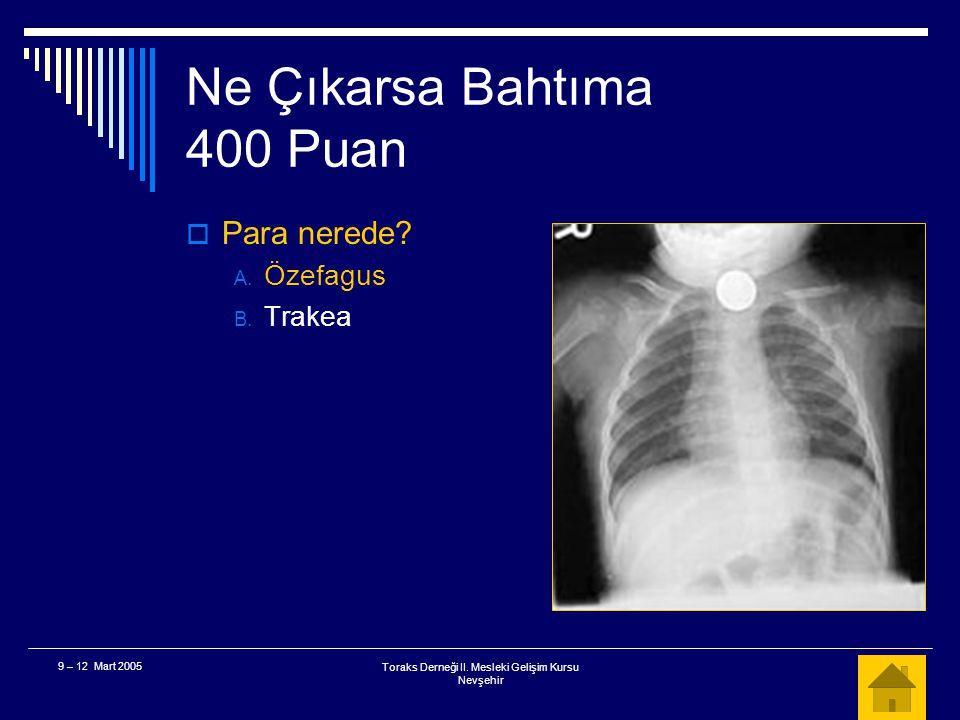 Toraks Derneği II. Mesleki Gelişim Kursu Nevşehir 9 – 12 Mart 2005 Ne Çıkarsa Bahtıma 400 Puan  Çalıştığınız acil servise solunum sıkıntısı ile bir ç