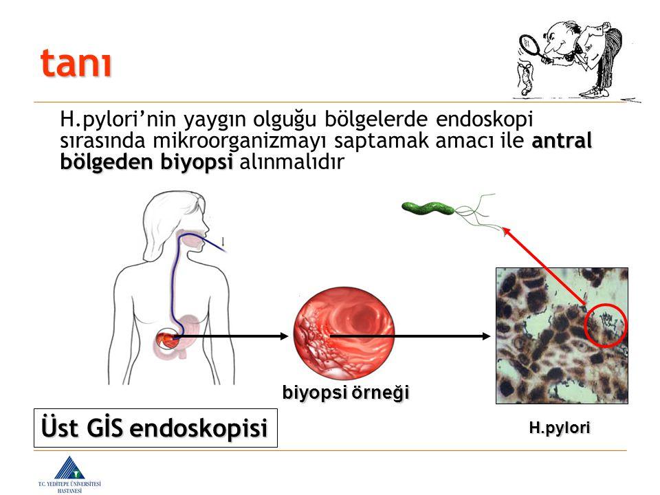 biyopsi örneği H.pylori antral bölgeden biyopsi H.pylori'nin yaygın olguğu bölgelerde endoskopi sırasında mikroorganizmayı saptamak amacı ile antral b