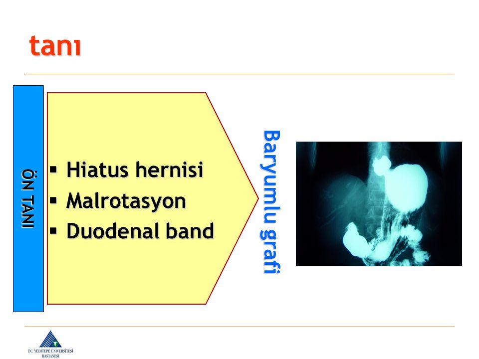 tanı ÖN TANI  Hiatus hernisi  Malrotasyon  Duodenal band Baryumlu grafi