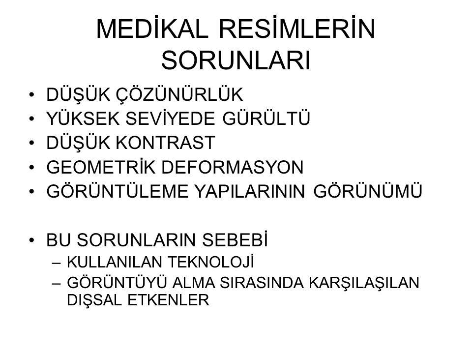 OTOMATİK BİR MEDİKAL SİSTEMDEKİ SORUNLAR YUMUŞATMA (SMOOTIHG) KAYIT (REGISTRATION) BÖLÜMLEME (SEGMENTATION)