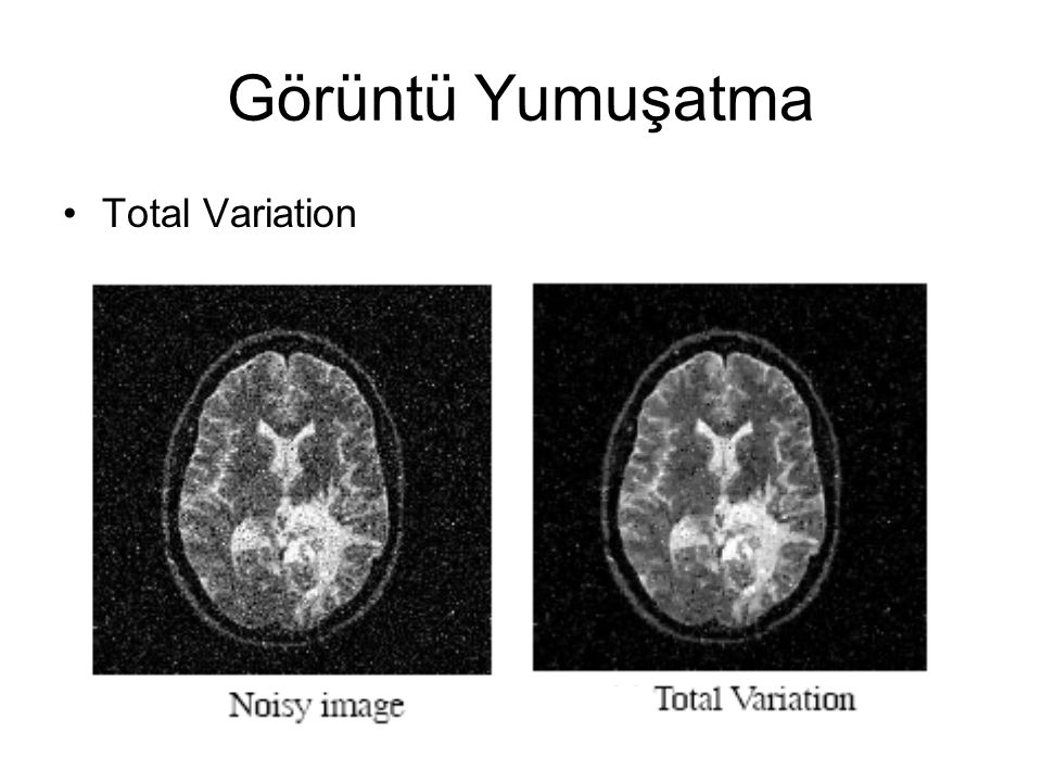 Image Segmentation Conformal Active Contours