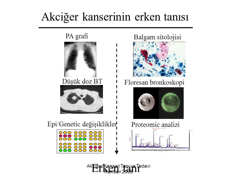 Akciğer Kanseri Tanı ve Tedavi Rehberi 2006 Akciğer kanserinin erken tanısı Erken tanı PA grafi Balgam sitolojisi Düşük doz BT Floresan bronkoskopi Ep