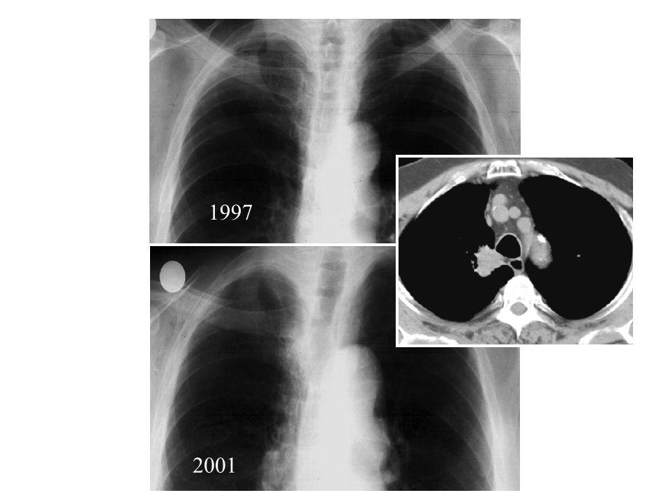 1997 2001