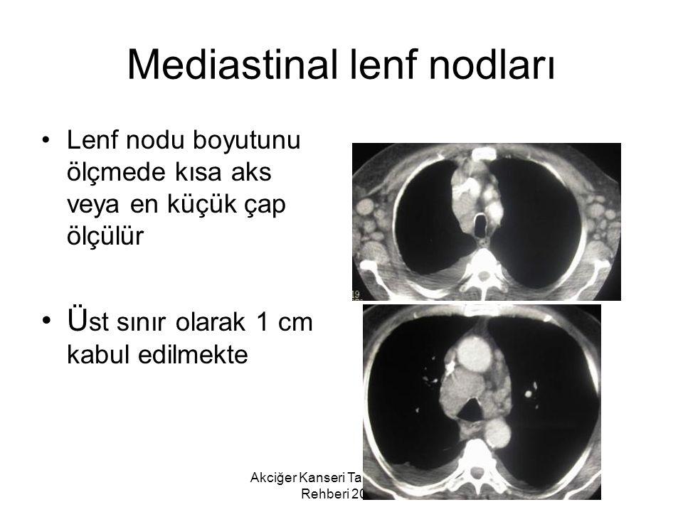 Akciğer Kanseri Tanı ve Tedavi Rehberi 2006 Mediastinal lenf nodları Lenf nodu boyutunu ölçmede kısa aks veya en küçük çap ölçülür Ü st sınır olarak 1