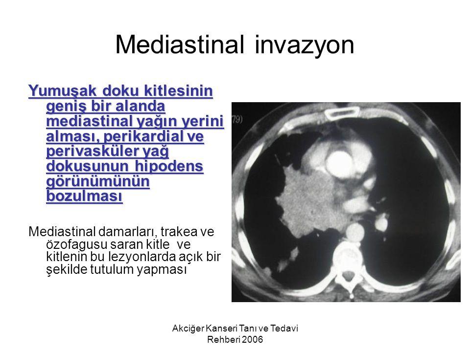 Akciğer Kanseri Tanı ve Tedavi Rehberi 2006 Mediastinal invazyon Yumuşak doku kitlesinin geniş bir alanda mediastinal yağın yerini alması, perikardial