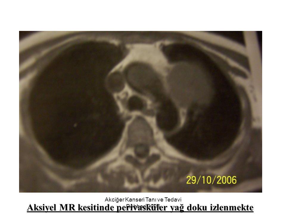 Akciğer Kanseri Tanı ve Tedavi Rehberi 2006 Aksiyel MR kesitinde perivasküler yağ doku izlenmekte