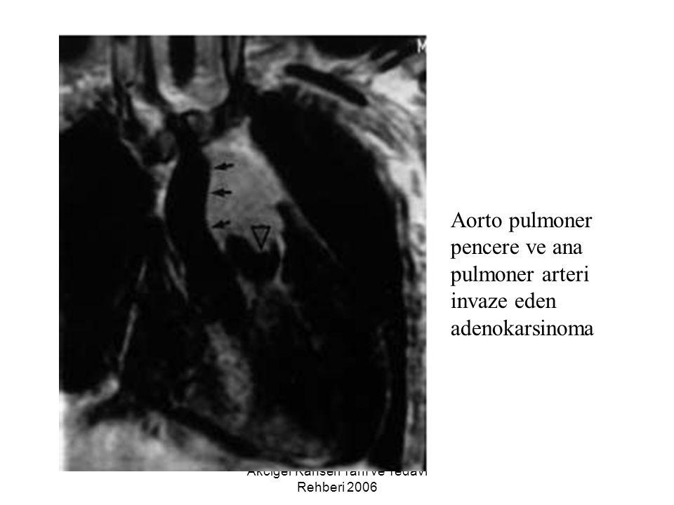 Akciğer Kanseri Tanı ve Tedavi Rehberi 2006 Aorto pulmoner pencere ve ana pulmoner arteri invaze eden adenokarsinoma