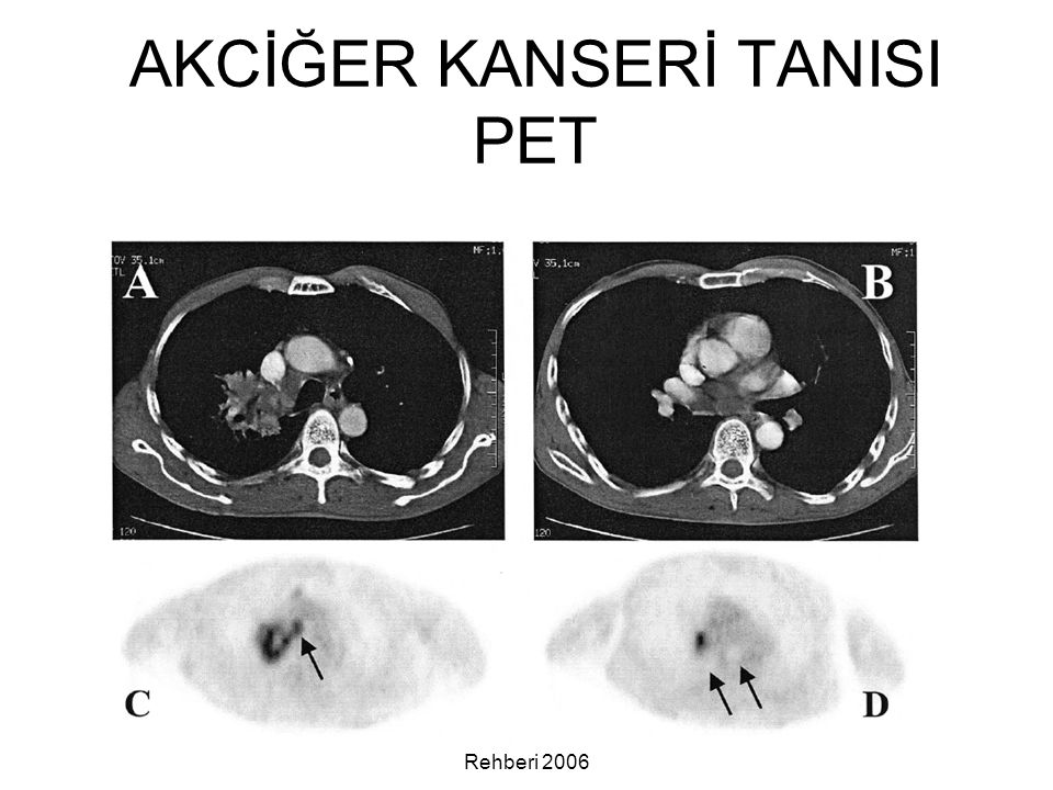 Akciğer Kanseri Tanı ve Tedavi Rehberi 2006 AKCİĞER KANSERİ TANISI PET