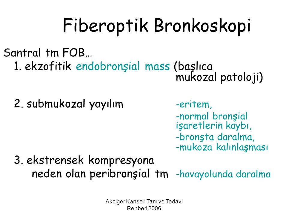 Akciğer Kanseri Tanı ve Tedavi Rehberi 2006 Fiberoptik Bronkoskopi Santral tm FOB… 1. ekzofitik endobronşial mass (başlıca mukozal patoloji) 2. submuk