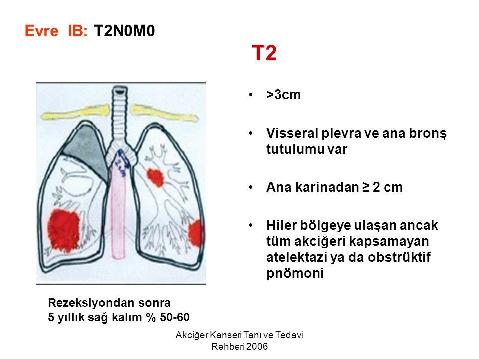 Akciğer Kanseri Tanı ve Tedavi Rehberi 2006 >3cm Visseral plevra ve ana bronş tutulumu var Ana karinadan ≥ 2 cm Hiler bölgeye ulaşan ancak tüm akciğer