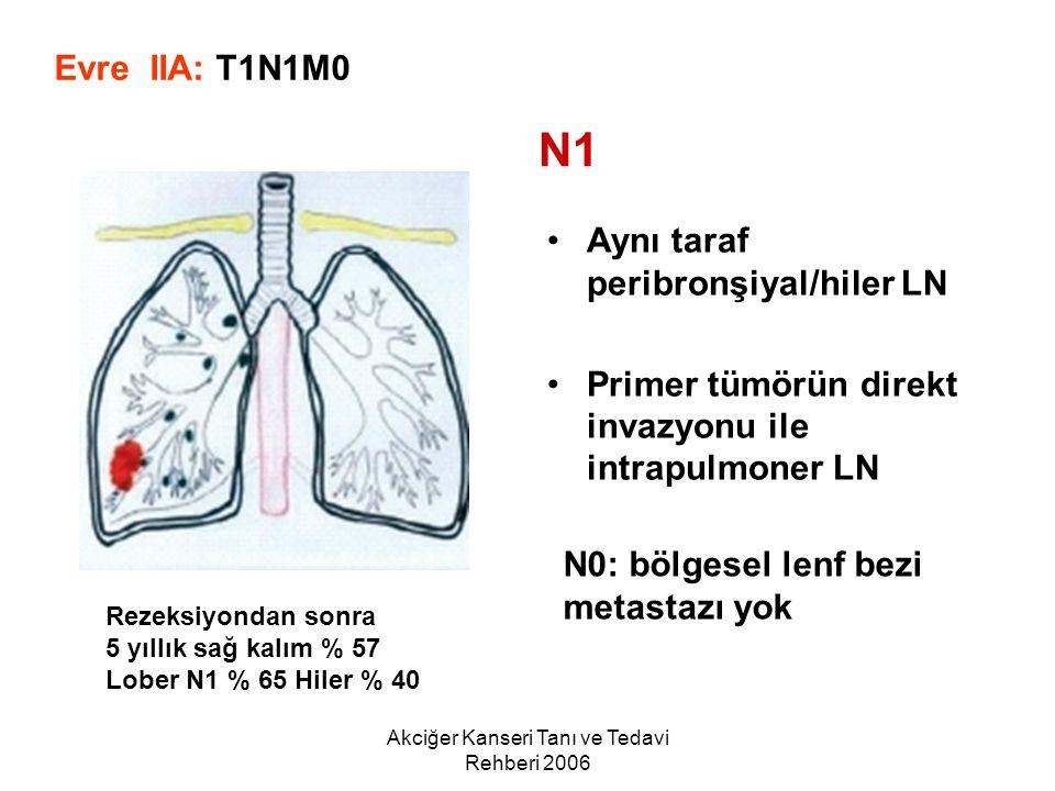 Akciğer Kanseri Tanı ve Tedavi Rehberi 2006 Aynı taraf peribronşiyal/hiler LN Primer tümörün direkt invazyonu ile intrapulmoner LN Evre IIA: T1N1M0 N1