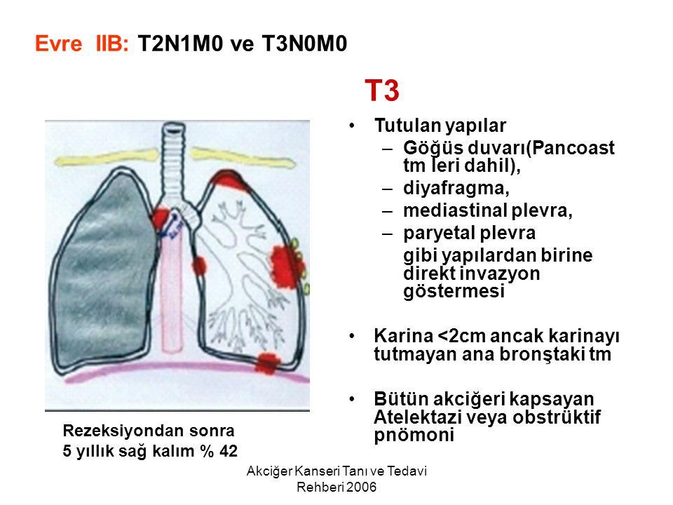 Akciğer Kanseri Tanı ve Tedavi Rehberi 2006 Tutulan yapılar –Göğüs duvarı(Pancoast tm leri dahil), –diyafragma, –mediastinal plevra, –paryetal plevra