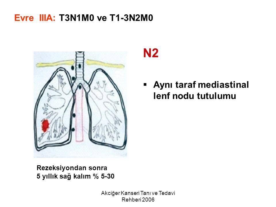 Akciğer Kanseri Tanı ve Tedavi Rehberi 2006  Aynı taraf mediastinal lenf nodu tutulumu Evre IIIA: T3N1M0 ve T1-3N2M0 N2 Rezeksiyondan sonra 5 yıllık