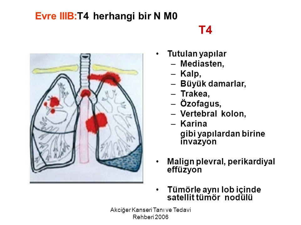 Akciğer Kanseri Tanı ve Tedavi Rehberi 2006 Tutulan yapılar –Mediasten, –Kalp, –Büyük damarlar, –Trakea, –Özofagus, –Vertebral kolon, –Karina gibi yap