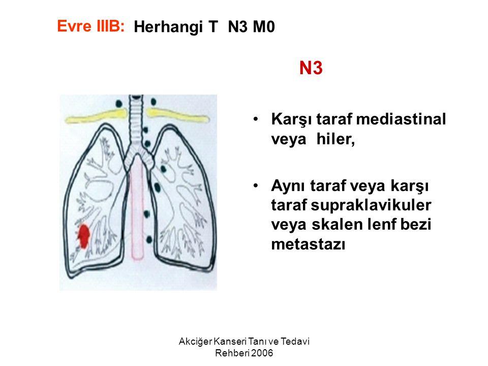 Akciğer Kanseri Tanı ve Tedavi Rehberi 2006 Herhangi T N3 M0 Karşı taraf mediastinal veya hiler, Aynı taraf veya karşı taraf supraklavikuler veya skal