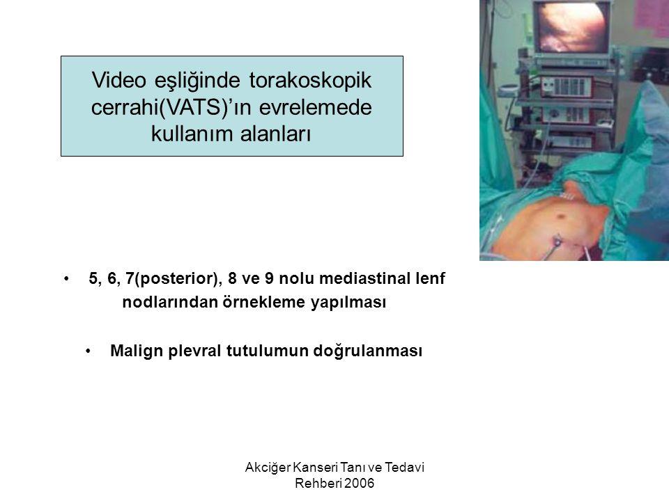 Akciğer Kanseri Tanı ve Tedavi Rehberi 2006 5, 6, 7(posterior), 8 ve 9 nolu mediastinal lenf nodlarından örnekleme yapılması Malign plevral tutulumun