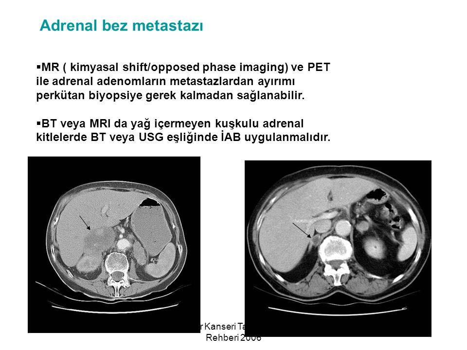 Akciğer Kanseri Tanı ve Tedavi Rehberi 2006 Adrenal bez metastazı  MR ( kimyasal shift/opposed phase imaging) ve PET ile adrenal adenomların metastaz