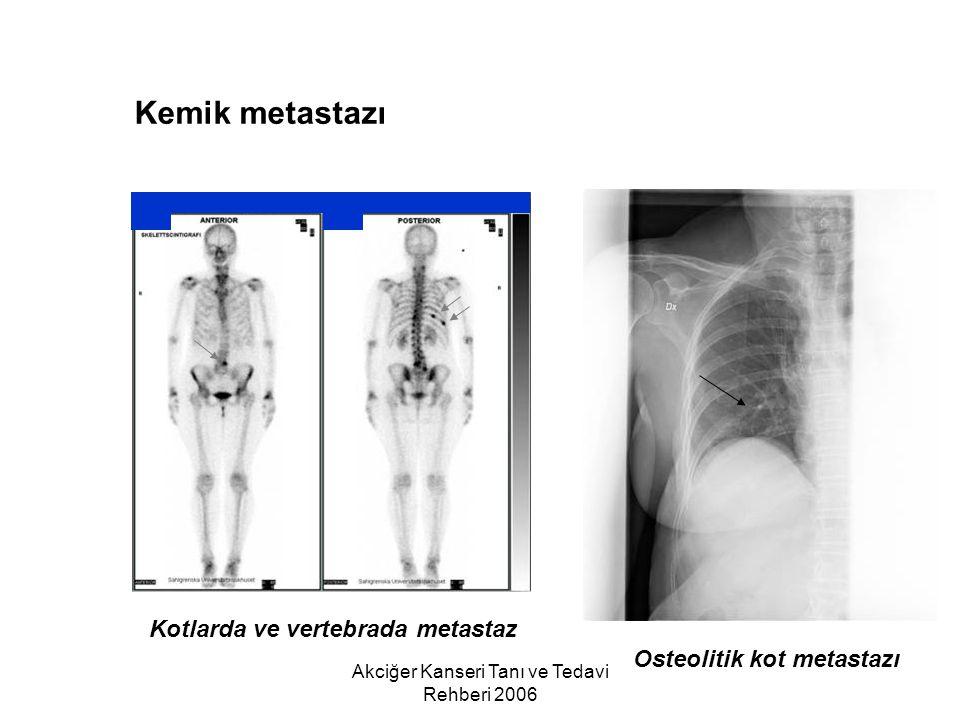 Akciğer Kanseri Tanı ve Tedavi Rehberi 2006 Kemik metastazı Kotlarda ve vertebrada metastaz Osteolitik kot metastazı