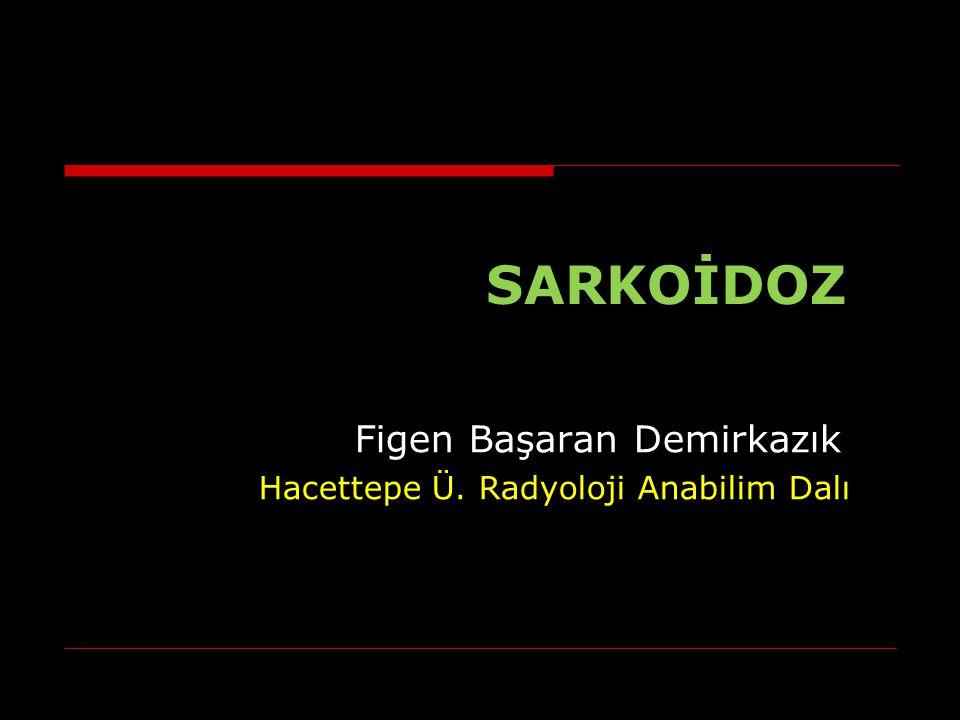 Sarkoidoz, kazeifikasyon göstermeyen granülomlarla karakterize bir immün sistem hastalığıdır.
