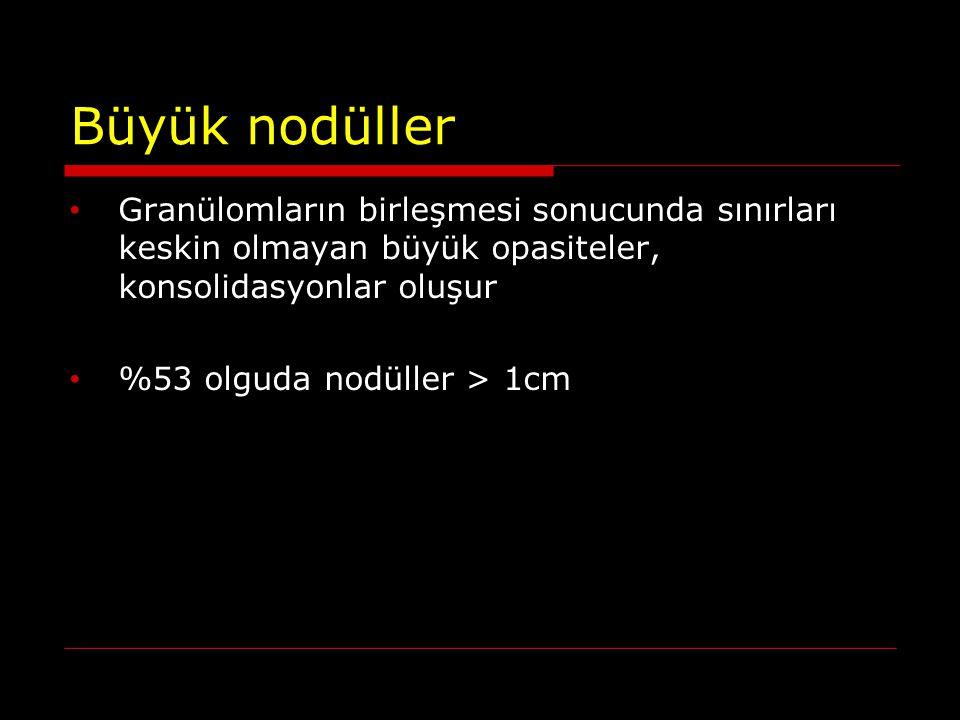 Büyük nodüller Granülomların birleşmesi sonucunda sınırları keskin olmayan büyük opasiteler, konsolidasyonlar oluşur %53 olguda nodüller > 1cm