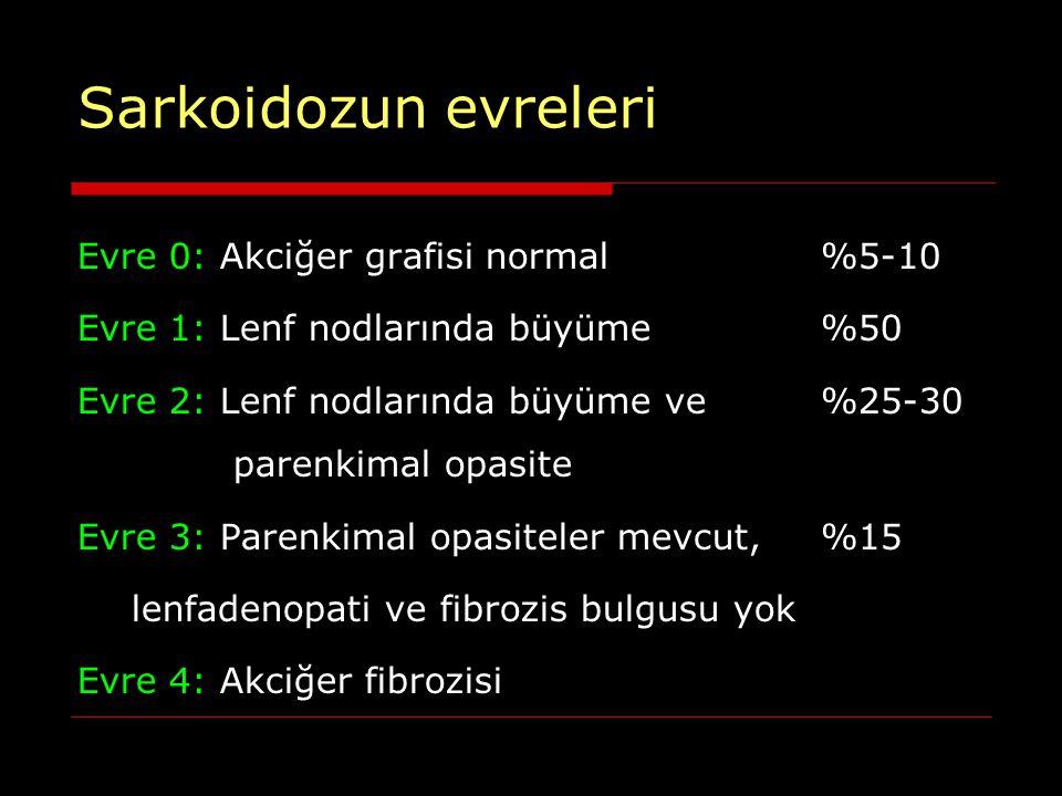 Lenfadenopati Bilateral hiler- sağ paratrakeal Aortikopulmoner, subkarinal Nadir: Ön mediastinal, arka mediastinal, aksiller, parakardiyak, retrokurural, unilateral hiler %1-3 Kalsifikasyon: Punktat, amorf, egg-shell