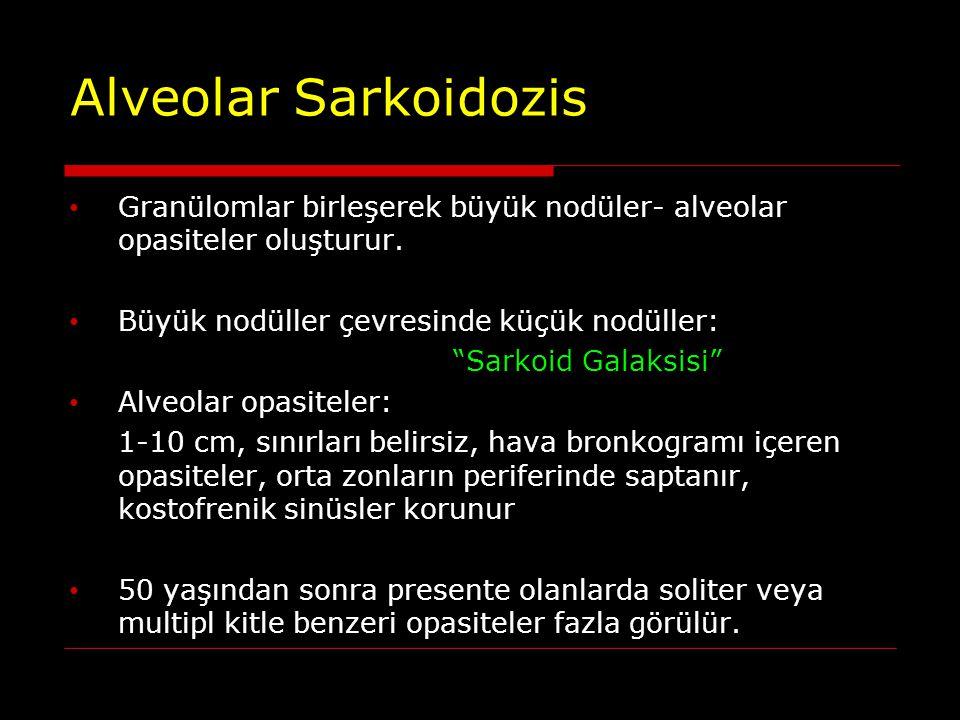 """Alveolar Sarkoidozis Granülomlar birleşerek büyük nodüler- alveolar opasiteler oluşturur. Büyük nodüller çevresinde küçük nodüller: """"Sarkoid Galaksisi"""