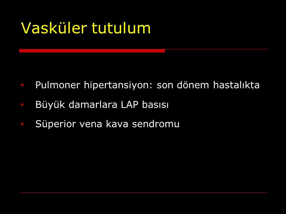 Vasküler tutulum Pulmoner hipertansiyon: son dönem hastalıkta Büyük damarlara LAP basısı Süperior vena kava sendromu