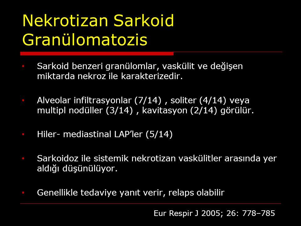Nekrotizan Sarkoid Granülomatozis Sarkoid benzeri granülomlar, vaskülit ve değişen miktarda nekroz ile karakterizedir. Alveolar infiltrasyonlar (7/14)