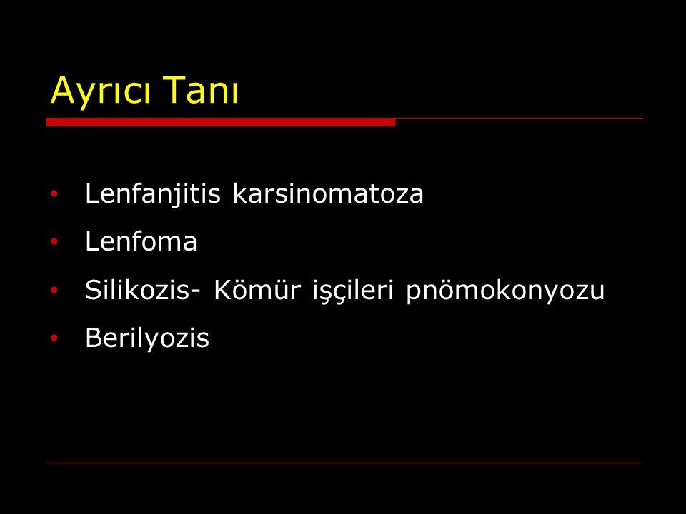 Ayrıcı Tanı Lenfanjitis karsinomatoza Lenfoma Silikozis- Kömür işçileri pnömokonyozu Berilyozis