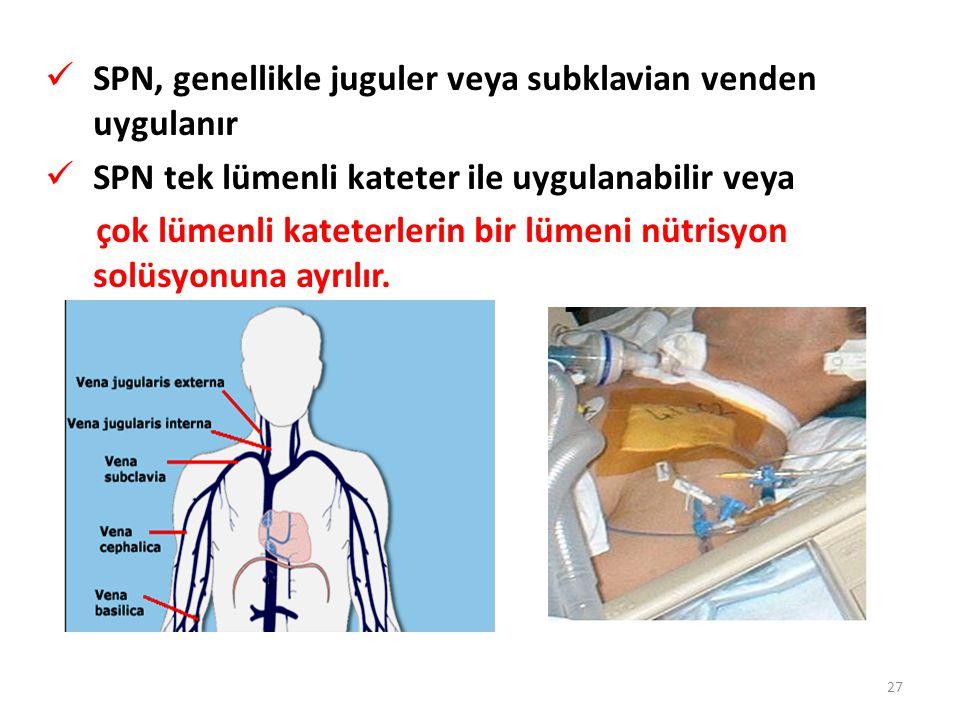 SPN, genellikle juguler veya subklavian venden uygulanır SPN tek lümenli kateter ile uygulanabilir veya çok lümenli kateterlerin bir lümeni nütrisyon