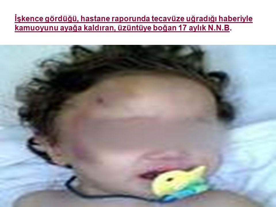 18 İşkence gördüğü, hastane raporunda tecavüze uğradığı haberiyle kamuoyunu ayağa kaldıran, üzüntüye boğan 17 aylık N.N.B.