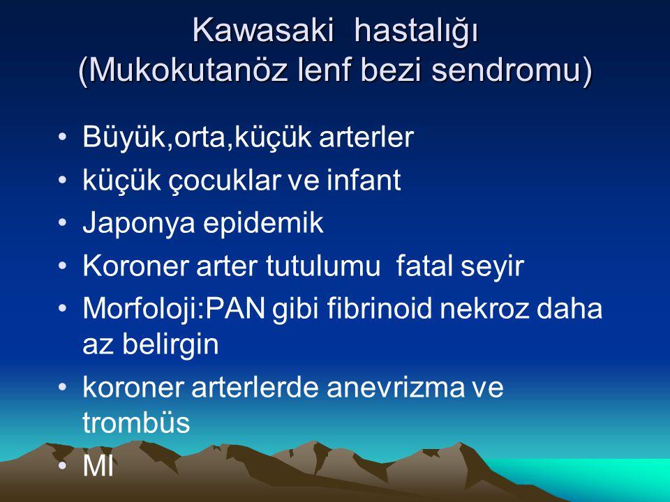 Kawasaki hastalığı (Mukokutanöz lenf bezi sendromu) Büyük,orta,küçük arterler küçük çocuklar ve infant Japonya epidemik Koroner arter tutulumu fatal s