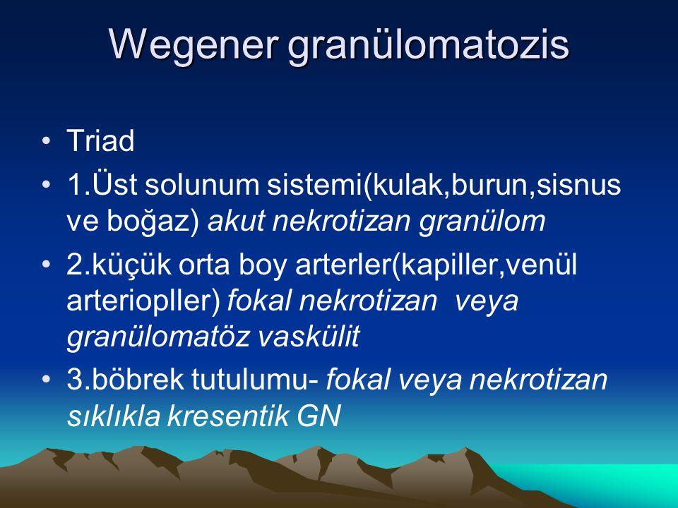 Wegener granülomatozis Triad 1.Üst solunum sistemi(kulak,burun,sisnus ve boğaz) akut nekrotizan granülom 2.küçük orta boy arterler(kapiller,venül arteriopller) fokal nekrotizan veya granülomatöz vaskülit 3.böbrek tutulumu- fokal veya nekrotizan sıklıkla kresentik GN