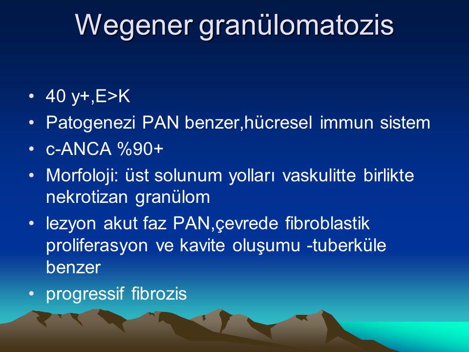 Wegener granülomatozis 40 y+,E>K Patogenezi PAN benzer,hücresel immun sistem c-ANCA %90+ Morfoloji: üst solunum yolları vaskulitte birlikte nekrotizan granülom lezyon akut faz PAN,çevrede fibroblastik proliferasyon ve kavite oluşumu -tuberküle benzer progressif fibrozis