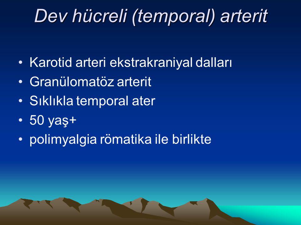 Dev hücreli (temporal) arterit Karotid arteri ekstrakraniyal dalları Granülomatöz arterit Sıklıkla temporal ater 50 yaş+ polimyalgia römatika ile birlikte