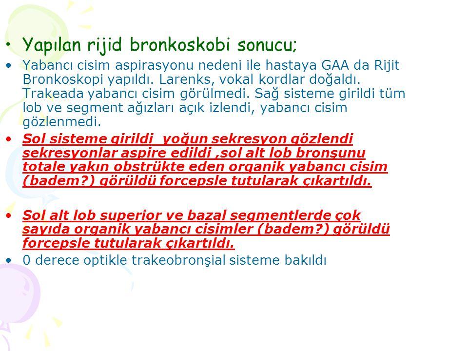 Yapılan rijid bronkoskobi sonucu; Yabancı cisim aspirasyonu nedeni ile hastaya GAA da Rijit Bronkoskopi yapıldı. Larenks, vokal kordlar doğaldı. Trake