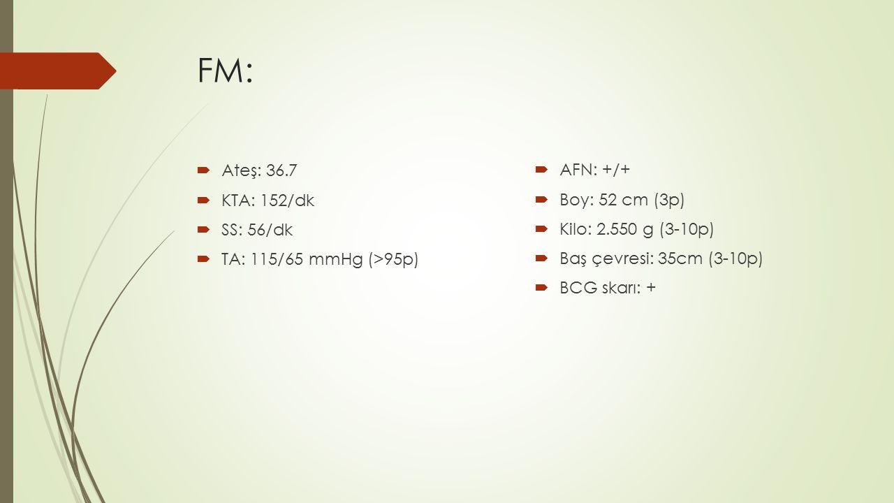 FM:  Ateş: 36.7  KTA: 152/dk  SS: 56/dk  TA: 115/65 mmHg (>95p)  AFN: +/+  Boy: 52 cm (3p)  Kilo: 2.550 g (3-10p)  Baş çevresi: 35cm (3-10p) 