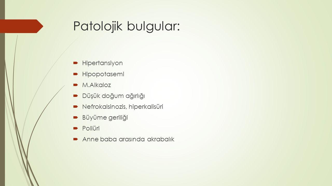Patolojik bulgular:  Hipertansiyon  Hipopotasemi  M.Alkaloz  Düşük doğum ağırlığı  Nefrokalsinozis, hiperkalisüri  Büyüme geriliği  Poliüri  A