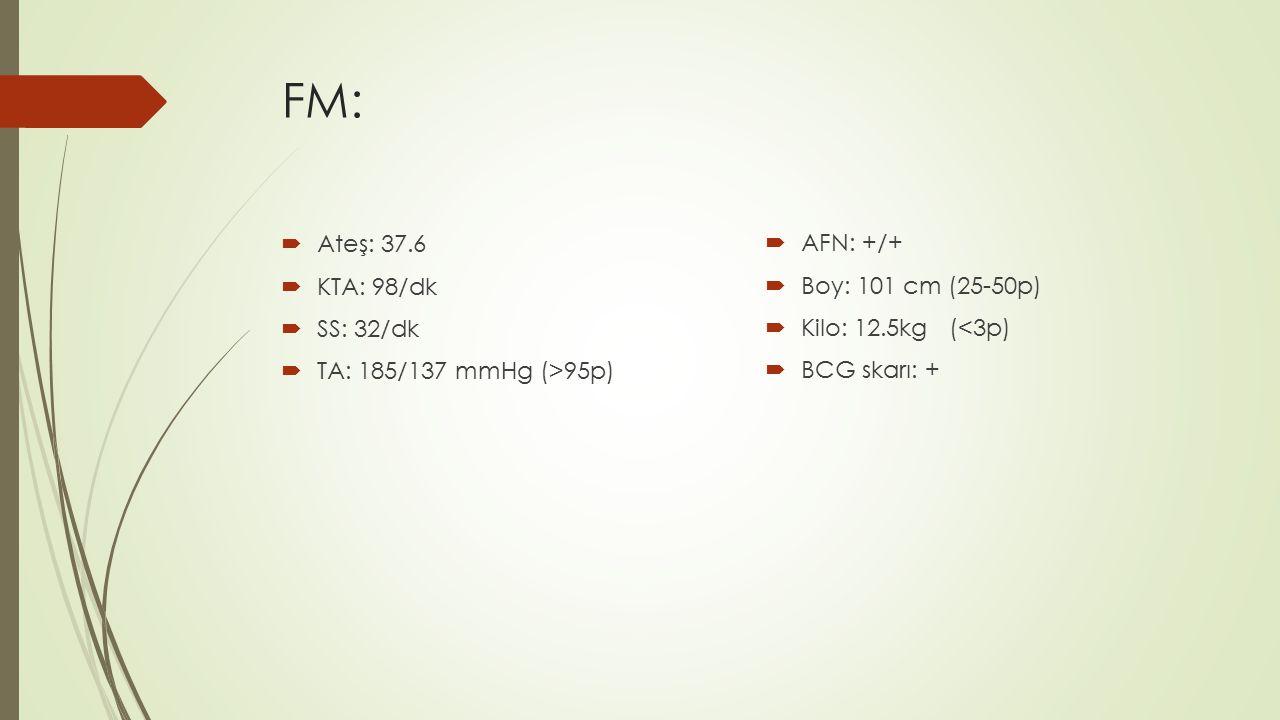 FM:  Ateş: 37.6  KTA: 98/dk  SS: 32/dk  TA: 185/137 mmHg (>95p)  AFN: +/+  Boy: 101 cm (25-50p)  Kilo: 12.5kg (<3p)  BCG skarı: +