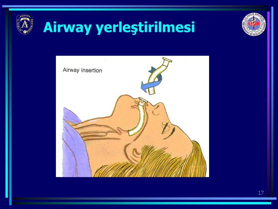 17 Airway yerleştirilmesi