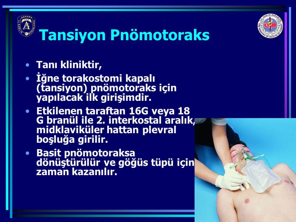 26 Tanı kliniktir, İğne torakostomi kapalı (tansiyon) pnömotoraks için yapılacak ilk girişimdir. Etkilenen taraftan 16G veya 18 G branül ile 2. interk