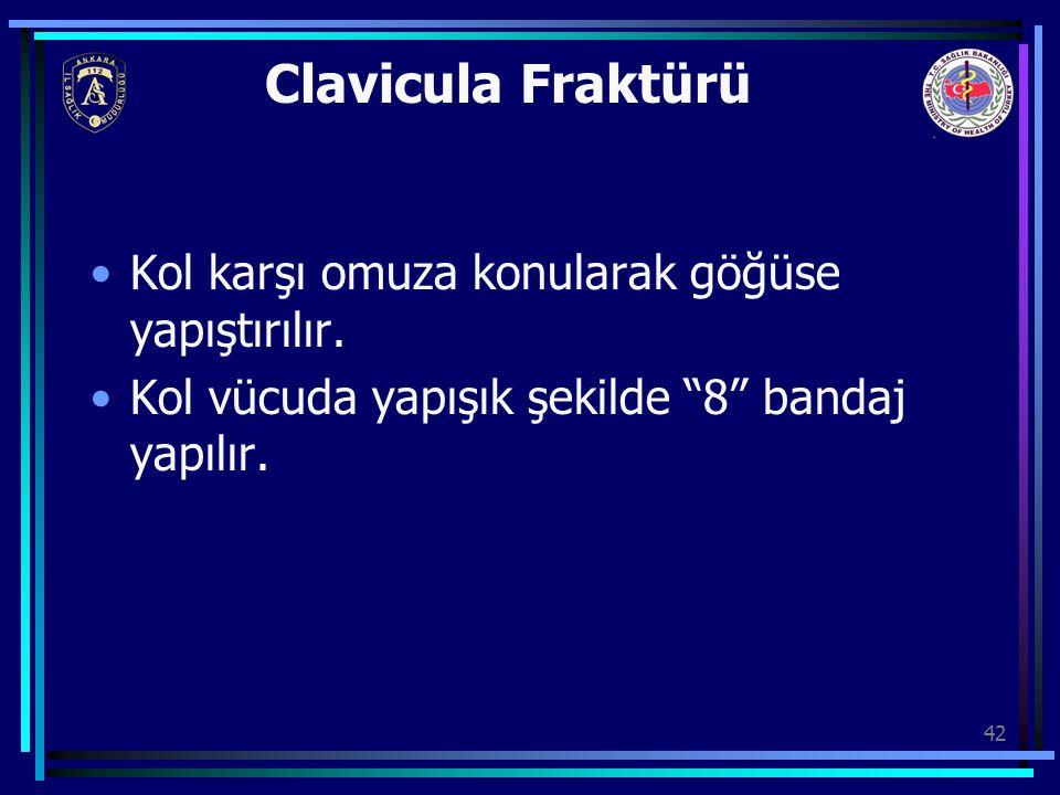 """42 Clavicula Fraktürü Kol karşı omuza konularak göğüse yapıştırılır. Kol vücuda yapışık şekilde """"8"""" bandaj yapılır."""