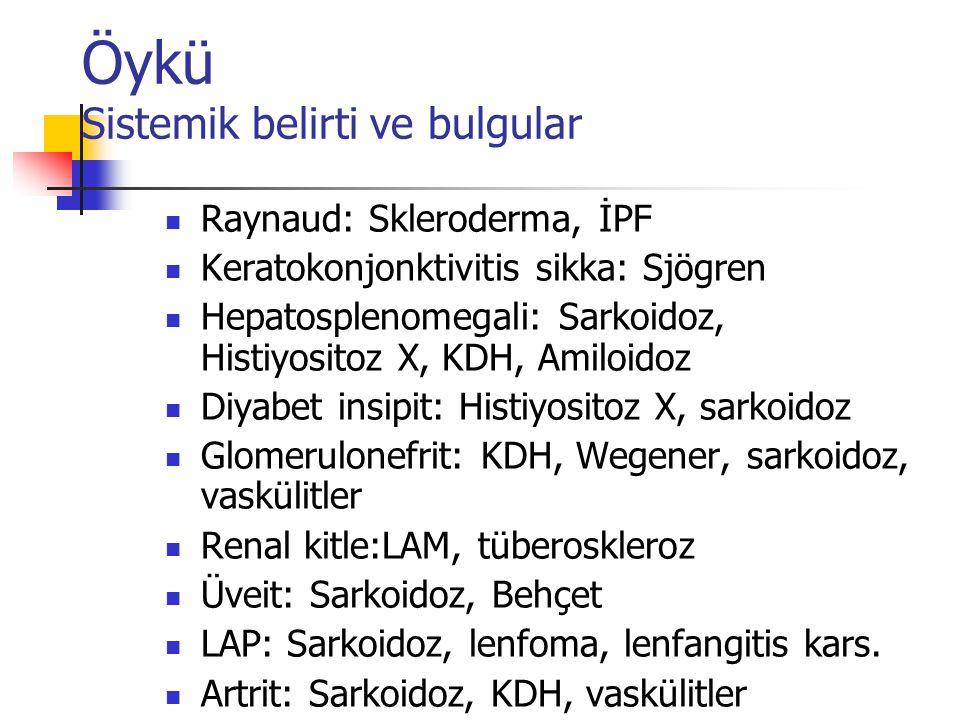 Öykü Sistemik belirti ve bulgular Raynaud: Skleroderma, İPF Keratokonjonktivitis sikka: Sjögren Hepatosplenomegali: Sarkoidoz, Histiyositoz X, KDH, Am